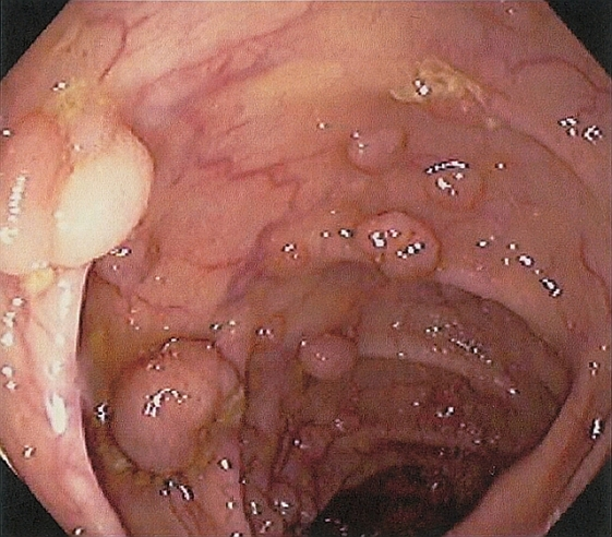 benign-colon-polyps